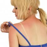 夏のお肌は油断大敵!日焼けのダメージを最小限に抑えるスキンケア
